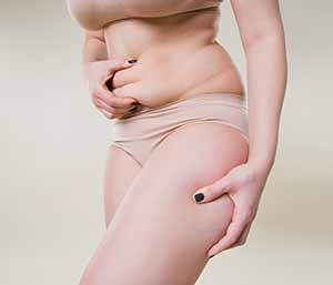 At CoolSprings Laser, Aesthetic & Skin Care Center in Franklin, TN, we use the tumescent liposuction technique, which facilitates safer, more effective treatment.